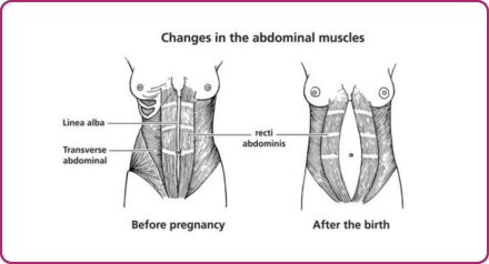 Changes in the abdominal muscles during pregnancy