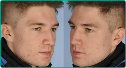 Ben Wade after Acne Treatment