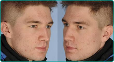 Acne Laser Treatment Bristol Laser Centre