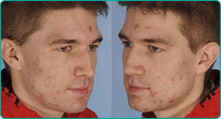 Ben Wade - Before Acne Laser Treatment
