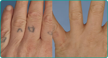 Before and after laser treatment for tattoo removal