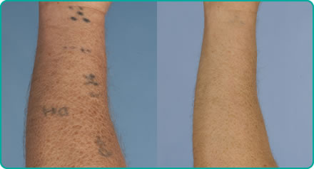 Tattoo removal - before (left) after (right)