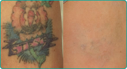 Tattoo removal colour (left) before laser treatment (right) after laser treatment