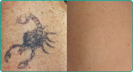 Single colour tattoo removal before (left) after (right)