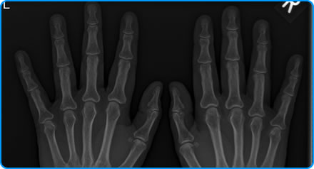 How is Rheumatoid Arthritis Investigated